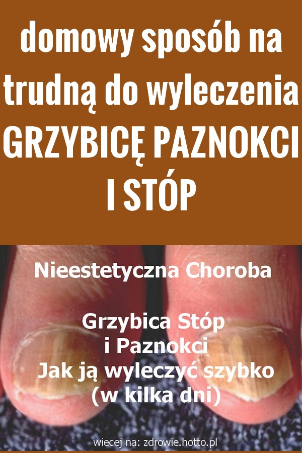Zdrowie.Hotto.pl-domowy-sposob-grzybice-paznokci-stop