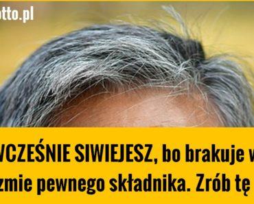 zdrowie.hotto.pl-siwiejesz-PRZEDWCZEŚNIE-bo-brak-ci-jednego-skladnika