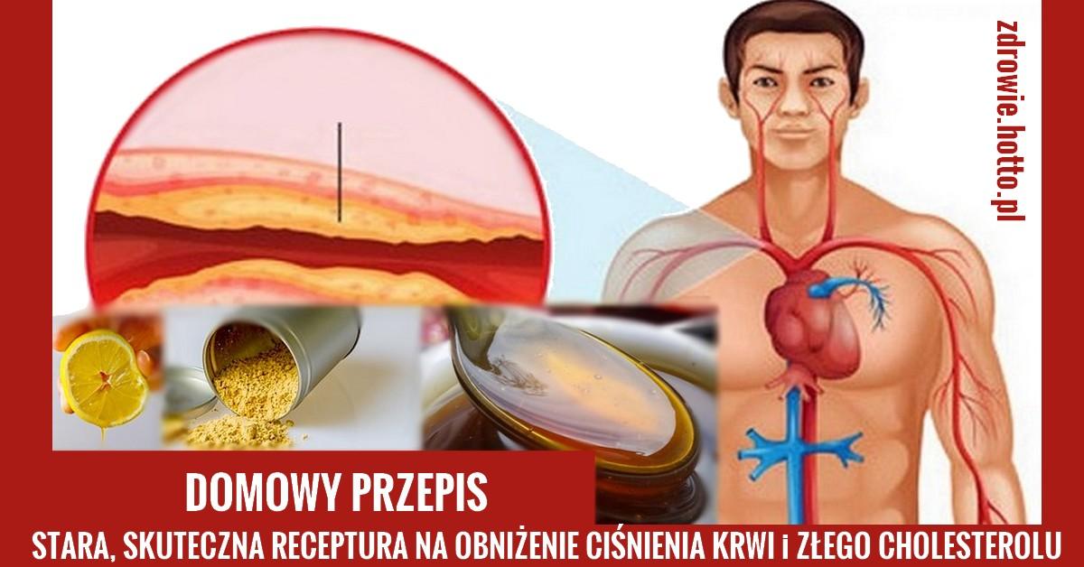 zdrowie.hotto.pl-mikstura-na-cisnienie-krwi-zly-cholesterol-przepis