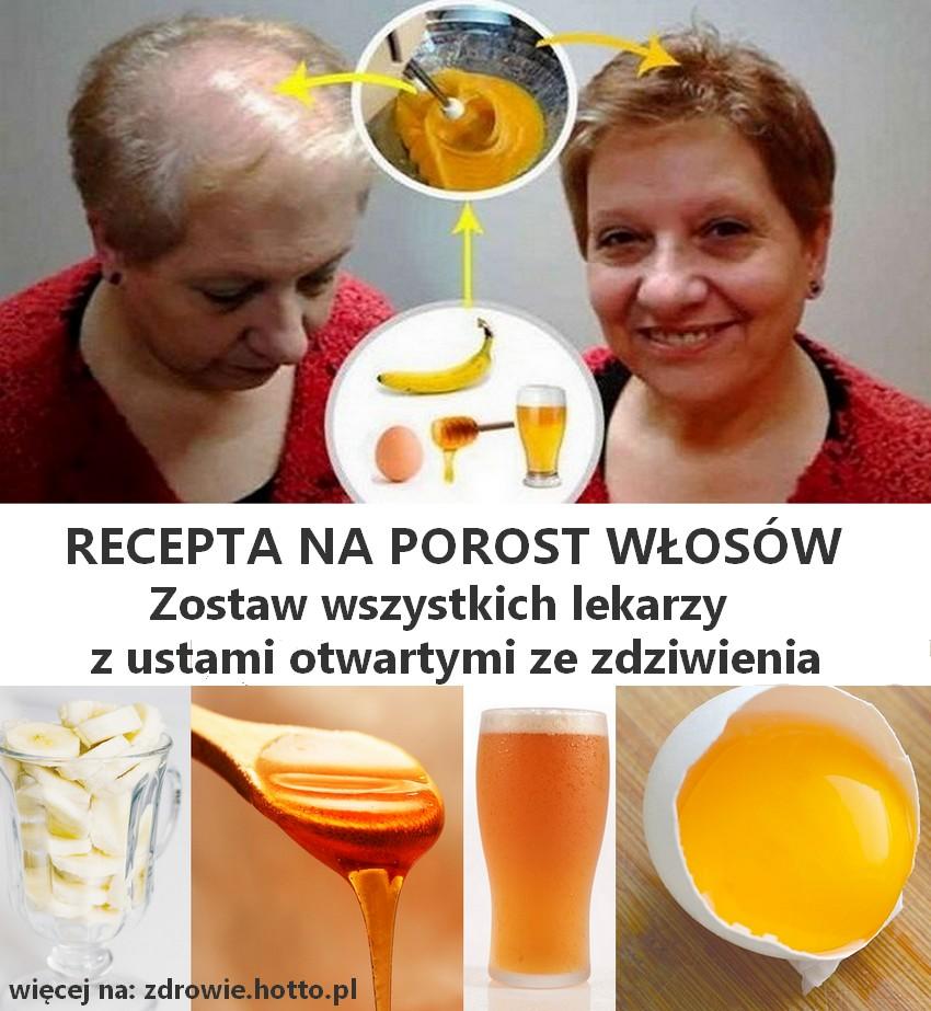 zdrowie.hotto.pl-recepta-na-porost-wlosow-i-lysienie-domowy-sposob