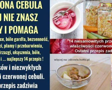 zdrowie.hotto.pl-czerwona-cebula-przepisy