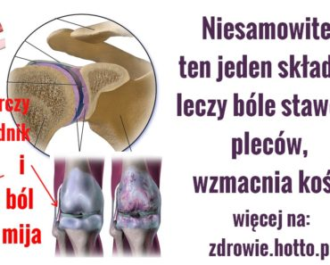 zdrowie.hotto.pl-na-bole-stawow-kolan-kregoslupa-plecow-wystarczy-1-skladnik-PRZEPIS
