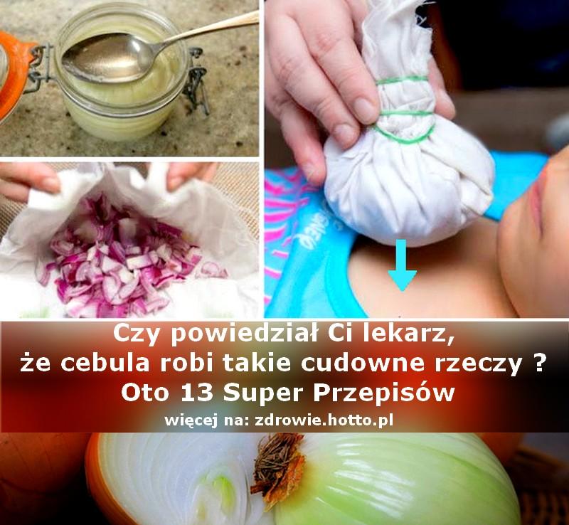zdrowie.hotto_.pl-cebula-w-skarpetce-wlasciwosci-zastosowanie-przepisy-leczenie