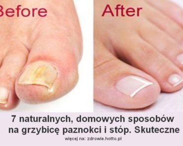 zdrowie.hotto.pl-jak wyleczyć grzybicę stóp i paznokci - domowe sposoby, przepisy