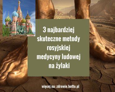 zdrowie.hotto.pl-3-skuteczne-metody-rosyjskiej-medycyny-ludowej-na-zylaki
