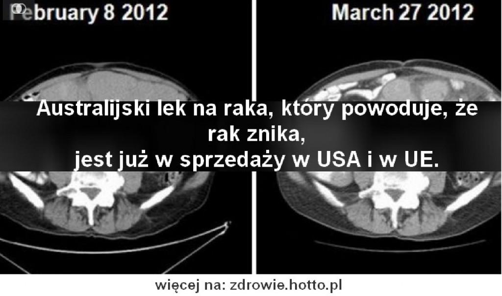 zdrowie.hotto.pl-lek-na-raka