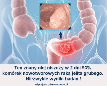 zdrowie.hotto.pl-olej-kokosowy-a-rak-wyniki-badan
