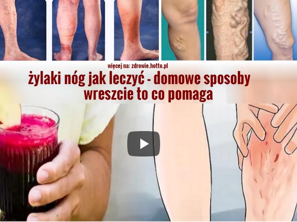 zdrowie.hotto.pl-zylaki-nog-jak-leczyc-domowe-sposoby