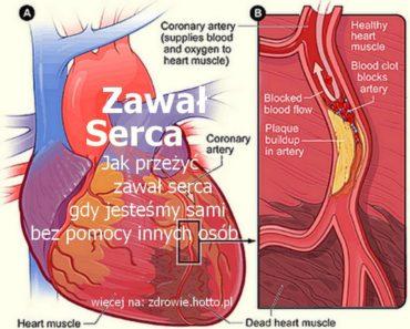 zdrowie.hotto.pl-zawal-serca-co-robic-gdy-jestesmy-sami-serce-po-zawale-zdjecie