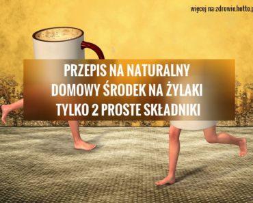 zdrowie.hotto.pl-naturalne-metody-leczenia-zylakow