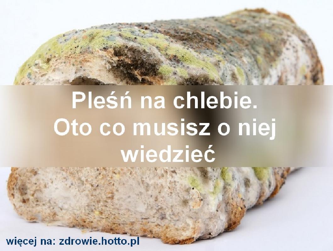 zdrowie.hotto_.pl-plesn-na-chlebie-splesnialy-chleb-co-warto-wiedziec