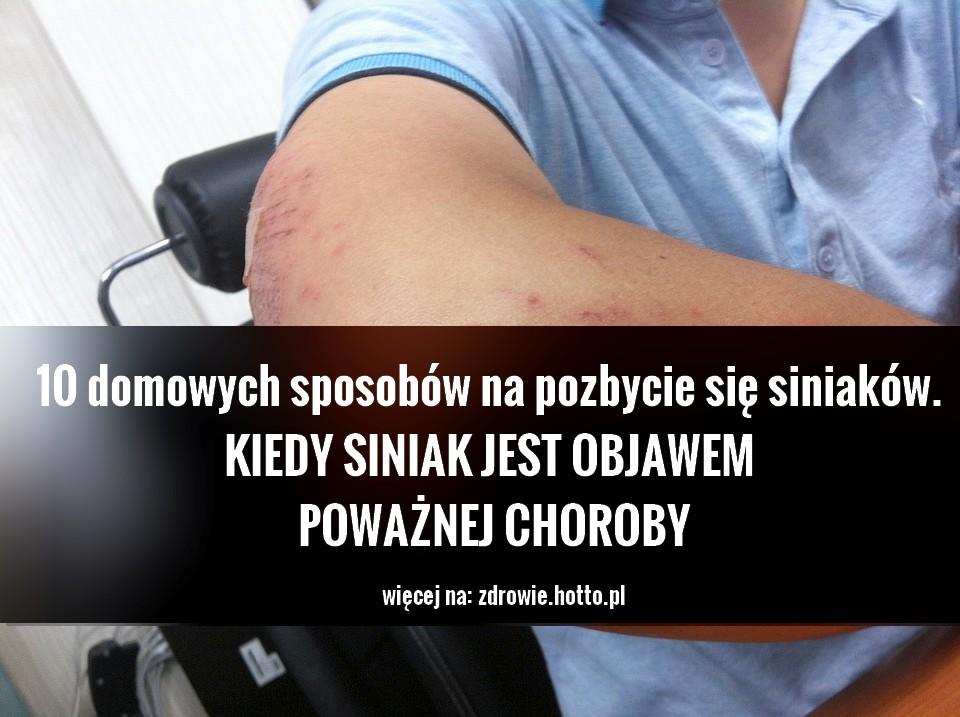 zdrowie.hotto_.pl-siniaki-jak-sie-pozbyc-przepisy-objawy-choroby.jpg