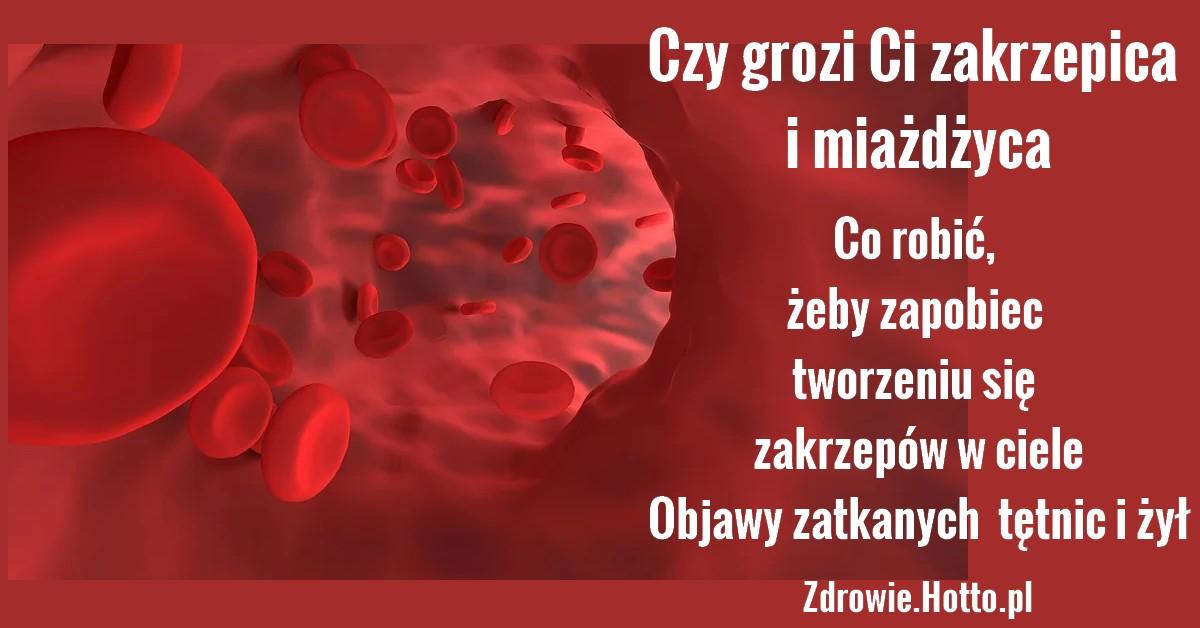 zdrowie.hotto.pl-zakrzepica-miazdzyca-objawy